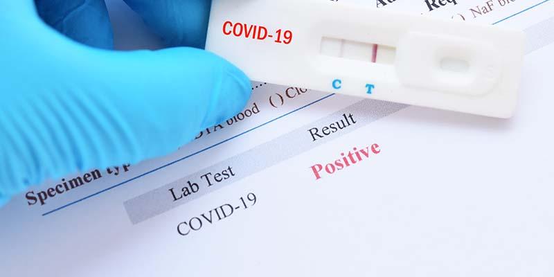 El Consejo Autonómico de Enfermería rechaza la propuesta de los farmacéuticos de hacer test de la Covid-19 en las oficinas de farmacia