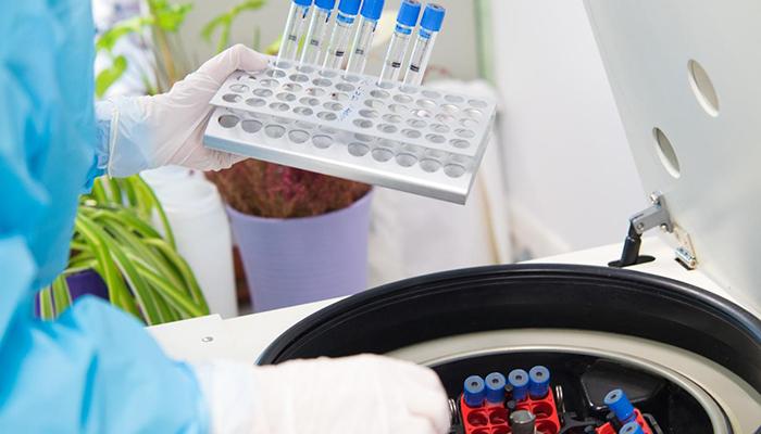Viernes 31 de julio Guadalajara registra un fallecimiento por coronavirus y suma seis nuevos casos y Cuenca, uno más